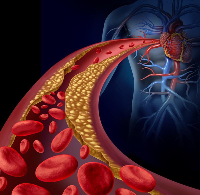 Coronary Artery Disease and Lifestyle Changes