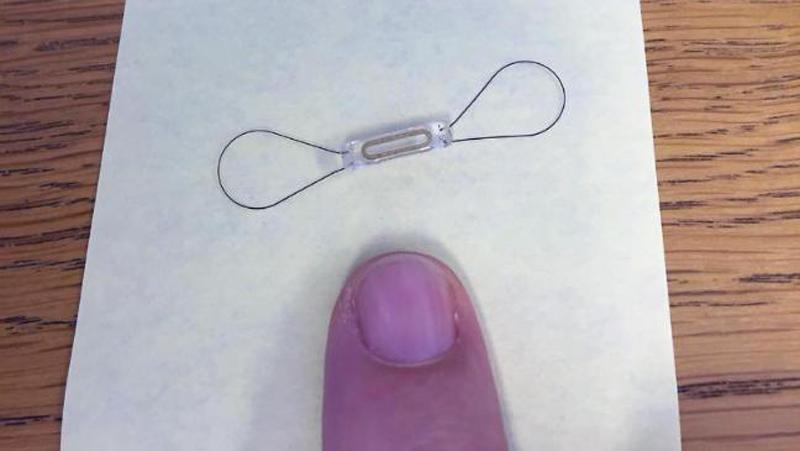 CardioMEMS™ HF System microchip implant