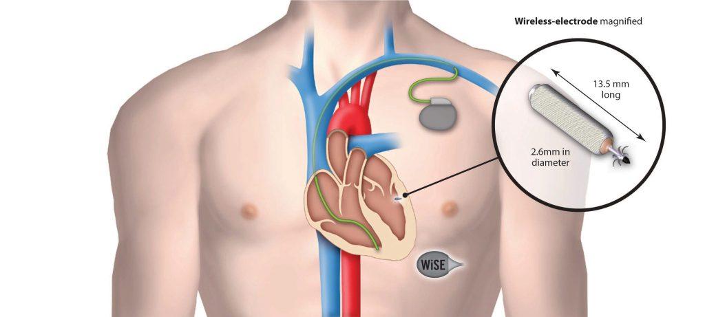 EBR World's First Wireless Pacemaker